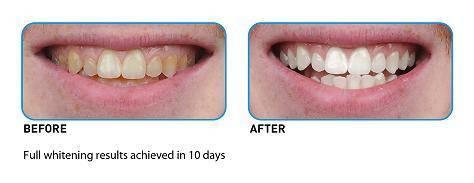 Crest Teeth Whitening