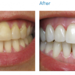 Teeth Whitening kit – before & after