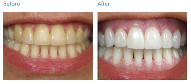 Teeth Whitening kit - before & after