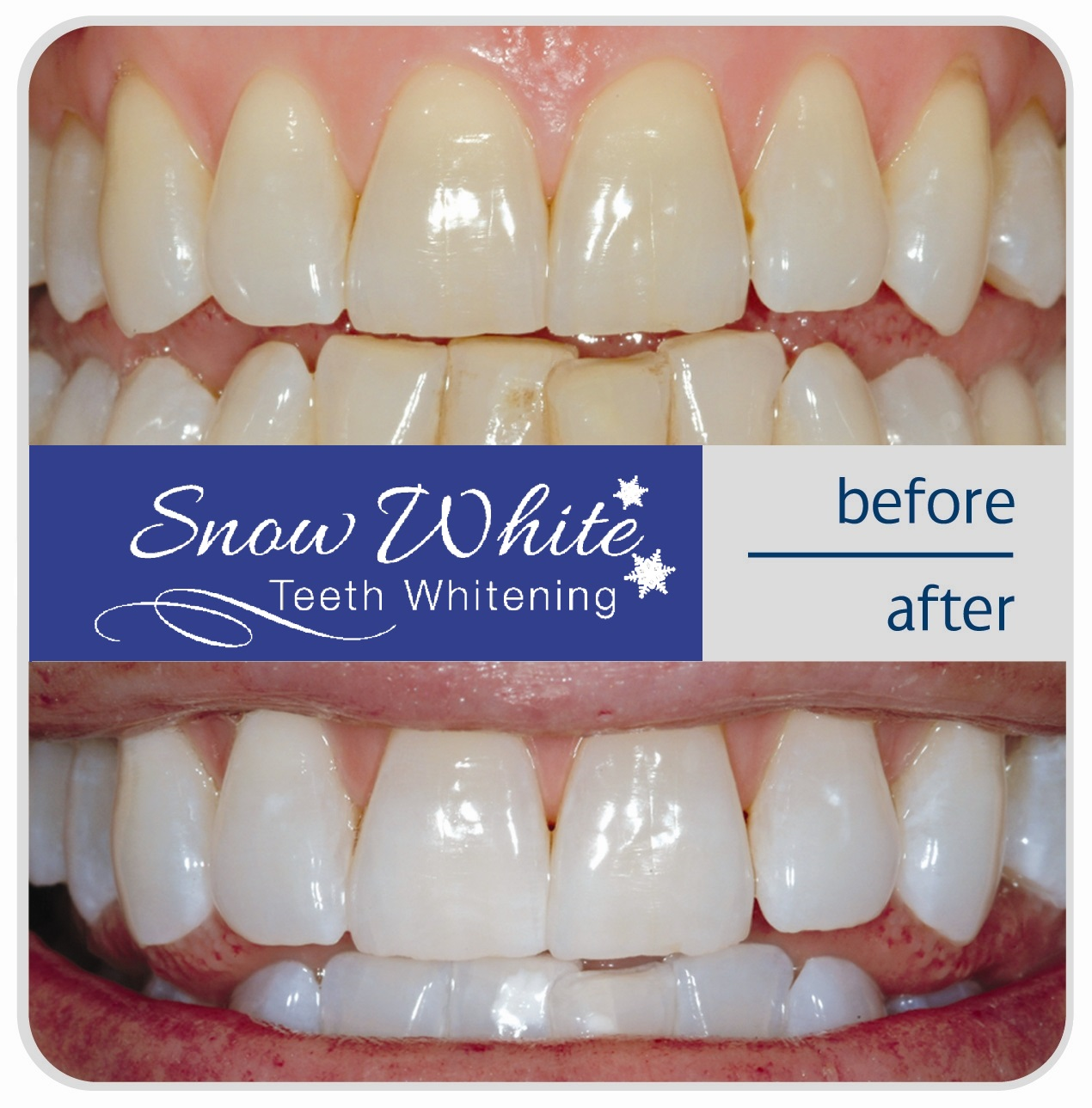 snow white teeth whitening kit before after